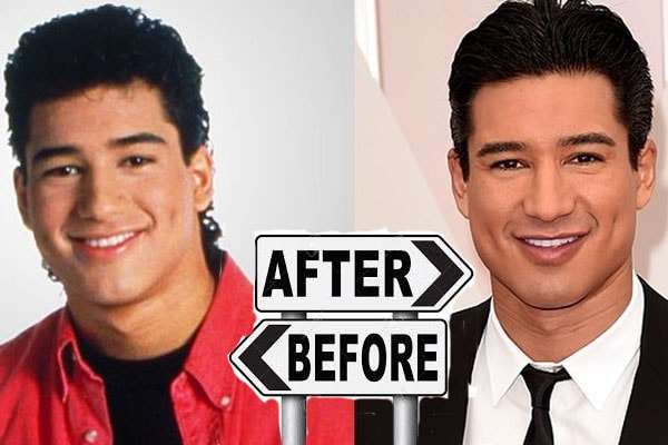 Mario Lopez is said to have undergone plastic surgery