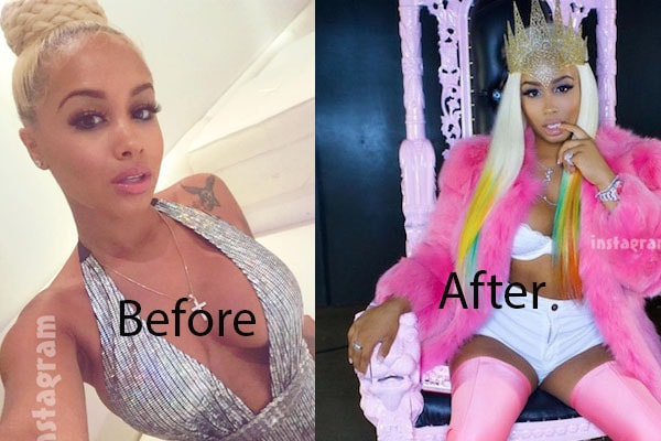 Dreamdoll surgeries before and after pictures.